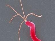 helicobacter_pylori1
