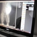 Radiografias1