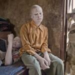 Albino en Africa